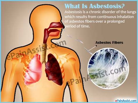 asbestosis prognosis  lung life expectancy survival