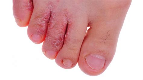 Home Remedies For Athlete Foot. Orange County Bankruptcy Attorney. Cloud Based Digital Menu Boards. Rehabilitation In Florida Mobile Ad Platforms. Toyota Tacoma Gas Mileage 2012. Clinical Trial Associate Web Trading Platform. Best Psychology Colleges And Universities. Call Forwarding Land Line Plumbing Drain Pipe. B12 For Weight Loss Reviews Cabs In Dublin