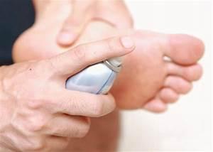 Грибок ногтей стопы фото симптомы лечение народными средствами