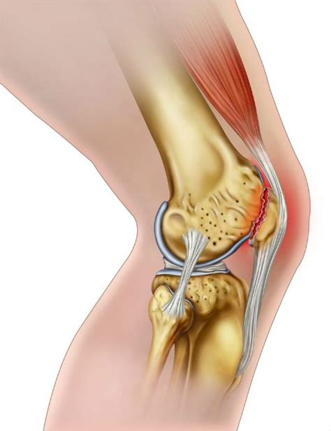 Stijve spieren, wat doe je er aan