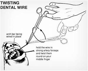 5 things nobody tells you about getting punched in the With wiring jaw shut