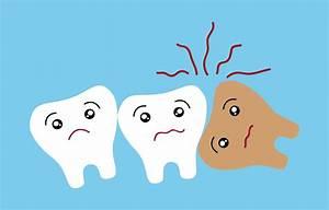 What Is An Impacted Wisdom Tooth