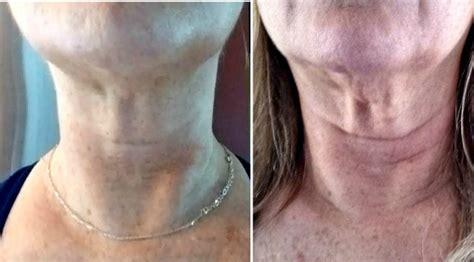 facial exercisers simple facial flex improve skin tone