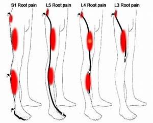 3 Common Causes  U0026 Symptoms Of Back Pain  U0026 Sciatica