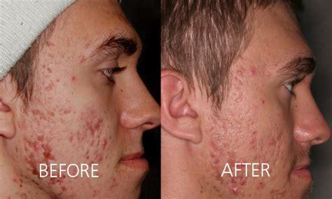 best acne light therapy acne treatment dr van aardt