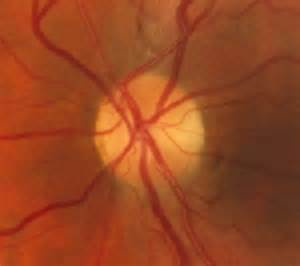 Visual fields interpretation in glaucoma: a focus on static automated ... Optic nerve atrophy