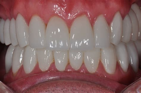 healthy gum color what color are gums healthy images