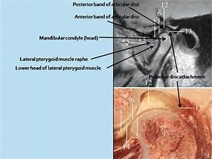 The Tempromandibular Joint  Tmj  Normal Anatomy And