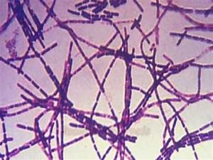 What is bacillus anthracis: MyKlassRoom