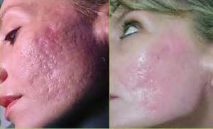 acne scar treatment with laser if you have a serious acne scarring ... Acne