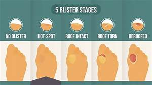 Pre Blister Hot Spots  Where You Are In The 5