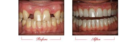dental implants queen creek az affinity dental az