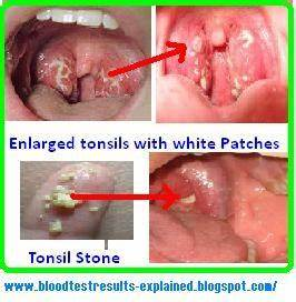 Image Gallery Sore Tonsils