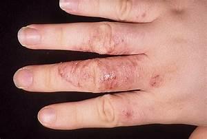 Как лечить грибок кутикулы ногтей