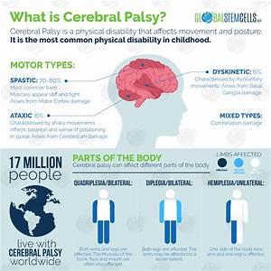 World Cerebral Palsy Day 2017 – Global Stem Cells