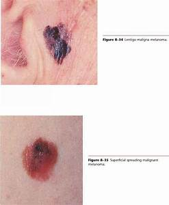 Tinea Cruris Cura - Physical Diagnosis - Mitch Medical ...