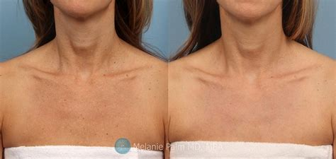 CO2 Laser Skin Resurfacing Before and After Photos
