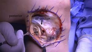 Anatomic Reconstruction Of The Proximal Tibiofibular Joint