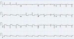 Complications Of Myocardial Infarction  U2013 Cardio Guide