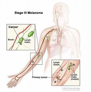 Melanoma Treatment
