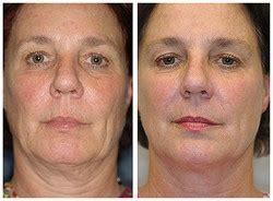 Thermage - lifting twarzy - zdjęcia przed i po | Tourmedica.pl