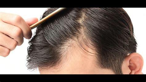 finasteride  minoxidil  mens hair loss treatment