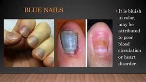 Nail diseases and disorders