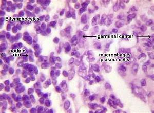 Lymph Nodule Cells