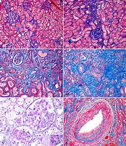 Scarring In Chronic Kidney Disease  Kidney  Cat   A  Cortical Scarring