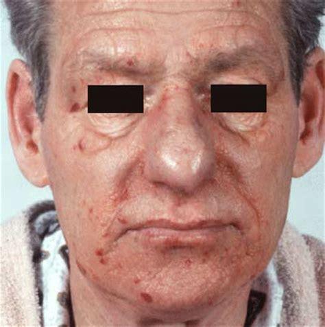 amyloidosis primary
