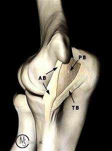 Ulnar Collateral Ligament Tears of the Elbow - Radsource