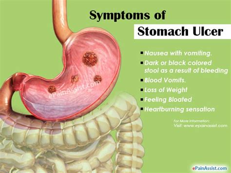 Stomach Ulcer Or Peptic Ulcer Diseasetreatmenthome. Google Analytics For Social Media Tracking. Technology Education Masters. Pay State Farm Car Insurance Online. Schools With Good Medical Programs. All In One Labor Law Poster Osx Code Names. Best Schools For Veterinary 1 Gig Internet. Donate Your Car Houston Checks For Quickbooks. Low Cost Business Checking Account