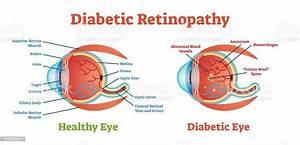 Diabetic Retinopathy Vector Illustration Diagram