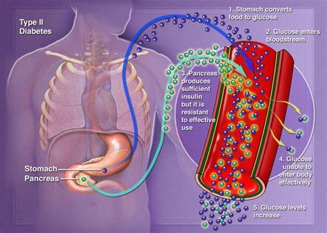 diabetes mellitus type  medical blog
