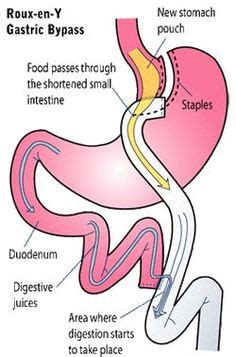 Gastric Bypass Vs Gastric Sleeve Surgery  I Love My. Best Simple Website Design Email Domain Host. Free Crm Software For Mac Dental Bone Grafts. Mass General Hospital Plastic Surgery. Teenage Drug Abuse Statistics. Chase Id Theft Protection Tax Credit For Cars. How To Become An It Project Manager. Annual Interest Rate Mortgage. Air Force Nco Academy Locations