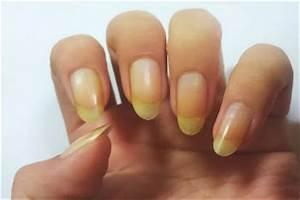 Gelbe Fensterrahmen Wieder Weiss : methoden um gelbe fingern gel wieder aufhellen nagellack test ~ Markanthonyermac.com Haus und Dekorationen