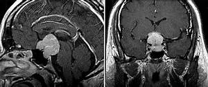 tuberculum_sellae_meningioma [Operative Neurosurgery]