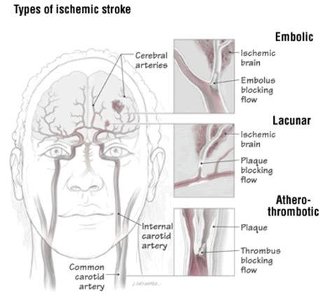 lacunar infarct causes