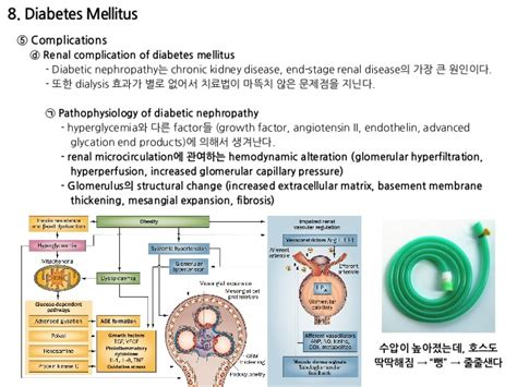 Stages of Change for Diabetes