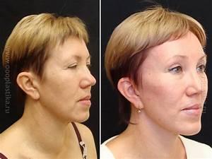 Химический пилинг лица от морщин
