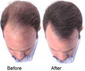 Can Pumpkin Seed Oil Stop Hair Loss?