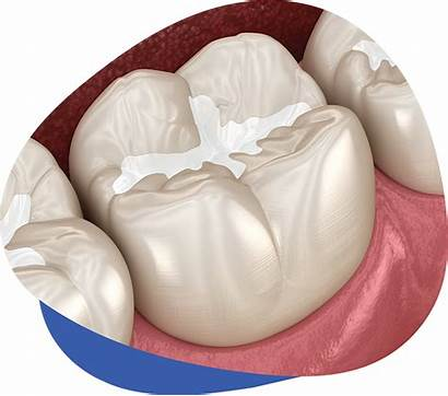 Sealants Dental Fluoride Services