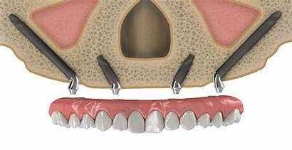 Zygomatic Implants Dental Implant Mexico Quad Zygoma