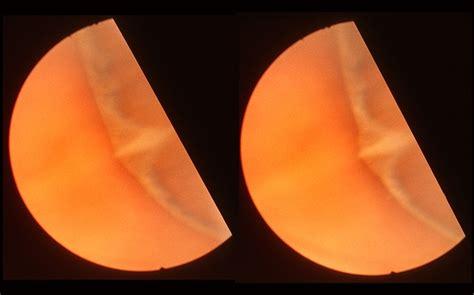 Normal Nasal Ora Serrata Retina Image Bank