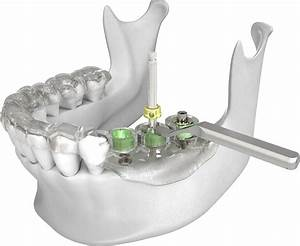 Dental Implants Placements In Nyc
