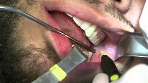 Buccal Fat Pad Reduction  The Real Deal By Dr  Joe Niamtu