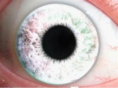 Eyes Cool