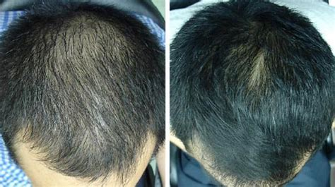 iRestore Laser Hair Treatment System Review - Redlight Clinic
