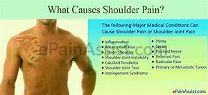 Q And A On Causes Of Shoulder Pain  13 Major Medical