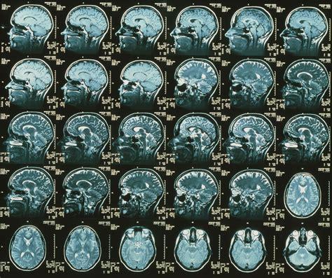 mris  multiple sclerosis types